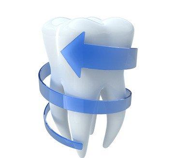 Der Zahnaufbau